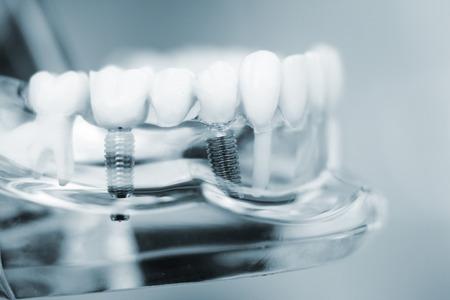 Tandartsen tand plastic model met schroef implantaat voor het onderwijs, het leren en de patiënten in tandartspraktijk die tanden en tandvlees. Stockfoto
