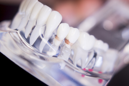 Dentists tooth plastic model used for teaching, learning and patient consultations in dental office showing teeth and gums. Stock Photo