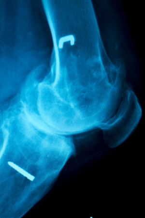 Orthopedics knee joint meniscus, ligament, tendon and cartilage injury titanium modern metal implant X-ray scan. Stock Photo