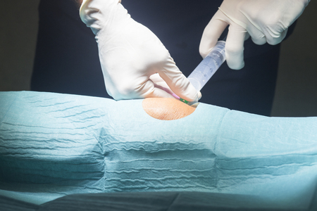 anaesthetic: Anaesthtist anaesthetic injection in knee for surgery hospital operation medical procedure in emergency room operating theater. Stock Photo