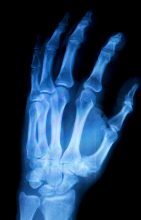 thumb x ray: Orthopedics Hand finger joint meniscus, ligament, tendon and cartilage injury X-ray scan.