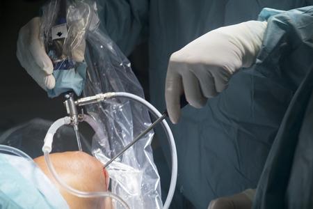 Knee keyhole surgery hospital arthroscopy operation medical procedure in emergency room operating theater.