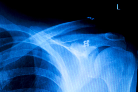 Shoulder back ribs orthopedics Xray test scan result used by Traumatologist to diagnose inury and treatment required.