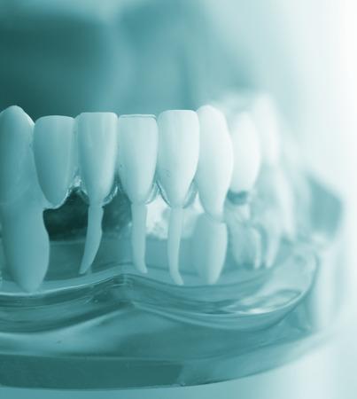 Dental Zahn Zahnmedizin Lernen der Schüler Lehrmodell zeigt Zähne, Wurzeln, Zahnfleisch, Zahnfleischerkrankungen, Karies und Plaque. Standard-Bild - 73861457