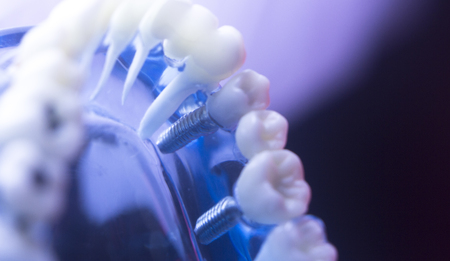 Dentists dental teeth model showing tooth enamel, gums, roots, plaque, decay, and titanium metal implants.