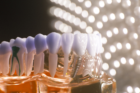 Dentists dental teeth teaching model showing each tooth, gum, root, implant, decay, plaque and enamel.