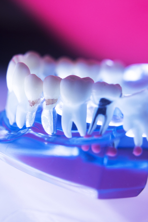 Dentists dental teeth model showing tooth enamel, gums, roots canal, plaque, decay, and titanium metal implants. Stock Photo