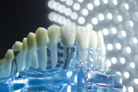 치아, 잇몸, 루트, 임 플 란 트, 부패, 패 및 법랑을 보여주는 치과 의사 치과 치아 교육 모델. 스톡 콘텐츠