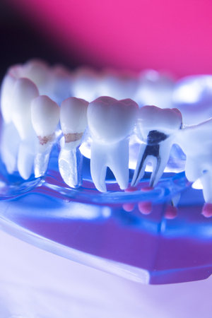 enamel: Dentists dental teeth model showing tooth enamel, gums, roots canal, plaque, decay, and titanium metal implants. Stock Photo