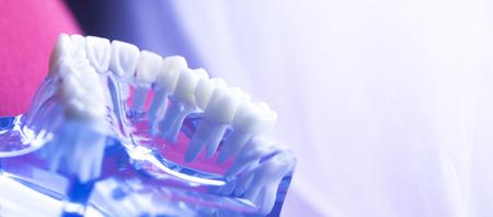 Zahnärztliches Zahnmodell der Zahnärzte, das Zahnschmelz, Zahnfleisch, Wurzeln, Plaque, Zerfall und Titanmetallimplantate zeigt. Standard-Bild - 83282711