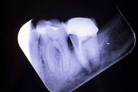 Dental xray test scan of tooth with crown filling and root canal infection inflamation of molar back teeth.