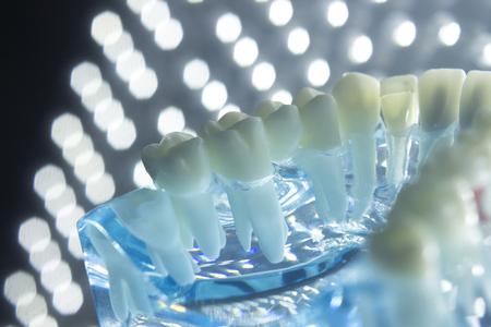 Zahnärzte Zahnmedizin Zähne Lehre Modell zeigt jeden Zahn, Gummi, Wurzel, Implantat, Verfall, Plaque und Emaille. Standard-Bild - 84085297