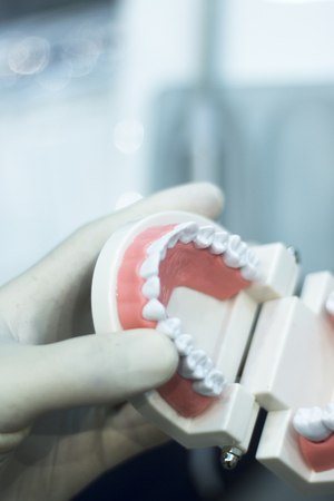 artificial model: Dental teeth orthodontic dentistry teachng model with gums, tooth enamel, plaque, roots and metal implants.
