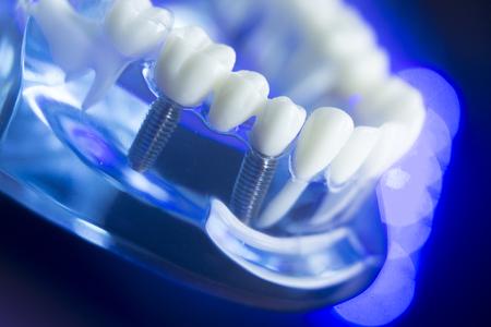 잇몸, 치아 법랑질, 플라크, 뿌리 및 금속 임플란트가있는 치과 치아 교정 치과 치과 교수 모델.