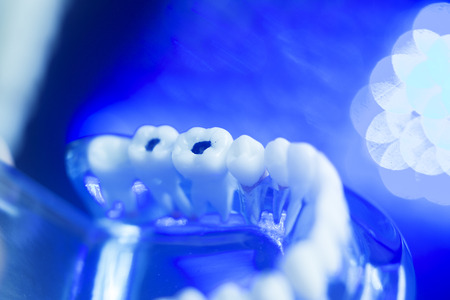 Dental teeth orthodontic dentistry teachng model with gums, tooth enamel, plaque and decay.