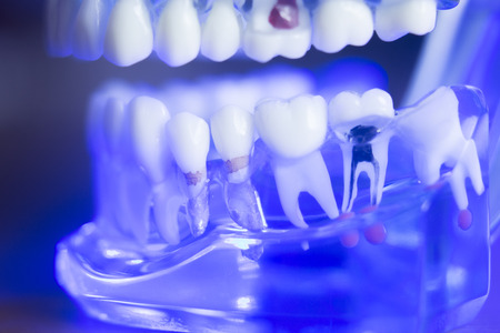 Dental teeth orthodontic dentistry teachng model with gums, tooth enamel, root nerve