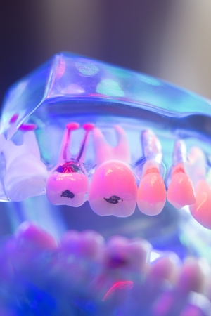 Dental teeth orthodontic dentistry teachng model with gums, tooth enamel, plaque and tooth decay. Stock Photo