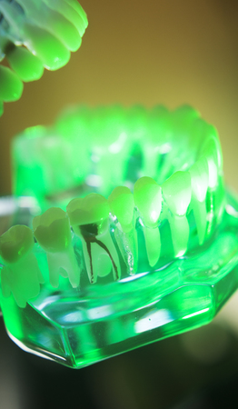 Dental teeth orthodontic dentistry teachng model with gums, tooth enamel, plaque, roots and metal implants.