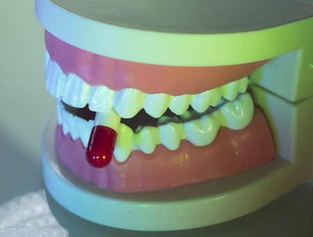 pain: Dental teeth, mouth, gums dentists teaching model showing each tooth and medication drug pill. Stock Photo