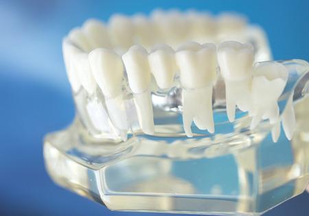 Dental Zahn Mund Zahnärzte Lehre Modell mit Zähnen, Zahnfleisch, Molaren und Weisheitszahn.