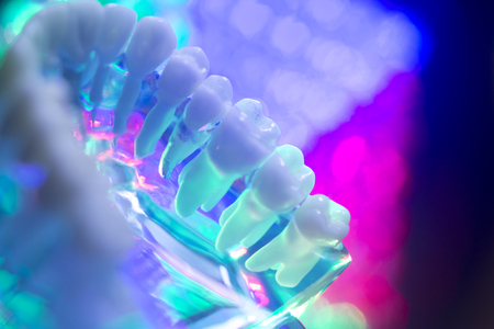 Dental teeth orthodontic dentistry teachng model with gums, tooth enamel, roots. Stock Photo