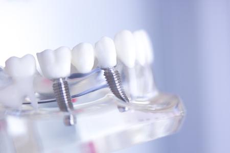 Dentsts dental prosthetic teeth, gums, roots teaching student model with titanium metal screw implant. 写真素材