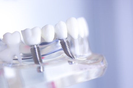 Dentsts dental prosthetic teeth, gums, roots teaching student model with titanium metal screw implant. 스톡 콘텐츠