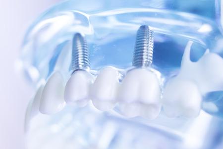Dentsts Zahnprothesenzähne, Zahnfleisch, Wurzeln, die Studentenmodell mit Titanmetallschraubenimplantat unterrichten. Standard-Bild - 87253006