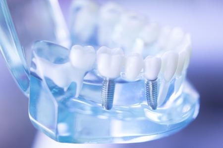 Dentsts Zahnprothesenzähne, Gummis, Wurzeln, die Kursteilnehmermodell mit Titanmetallschraubenimplantat unterrichten. Standard-Bild - 87591947