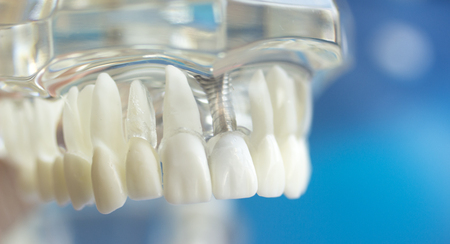 Dental teeth mouth dentists teaching model with teeth, gums, molars and wisdom tooth. Stock Photo