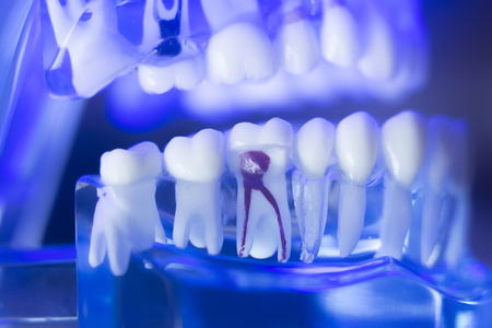 Dental teeth orthodontic dentistry teachng model with gums, tooth enamel, root nerve