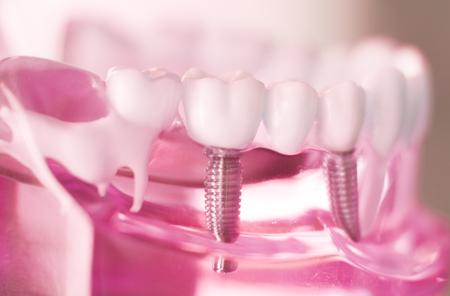 Dentsts Zahnprothesenzähne, Zahnfleisch, Wurzeln, die Studentenmodell mit Titanmetallschraubenimplantat unterrichten. Standard-Bild - 87945441