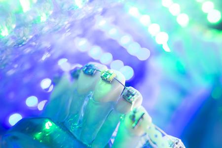 Dental teeth retainers metal aligners brackets to straighten teeth in orthodontic dentistry treatments.