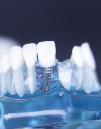 Dentsts dental prosthetic teeth, gums, roots teaching student model with gap in front teeth. Stock Photo