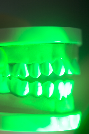 Dental teeth orthodontic dentistry teachng model with gums, tooth enamel, roots and jaw. Stock Photo