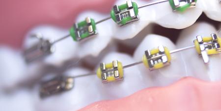 Cosmetic dentistry orthodontics dental metal wire teeth brackets teaching student model.