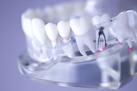 molares: Dental teeth mouth dentists teaching model with teeth, gums, molars and wisdom tooth. Foto de archivo