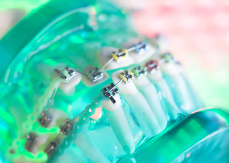 Dental teeth retainers metal aligners brackets to straighten teeth in orthodontic dentistry treatments.