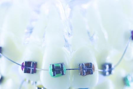 Orthodontics dentists teaching model dental teeth plastic and metal brackets aligners to straighten each tooth.