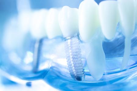 歯科医の口の歯モデルの歯科医の歯科チタニウムの審美的な矯藤の歯のインプラントは隔離される。 写真素材