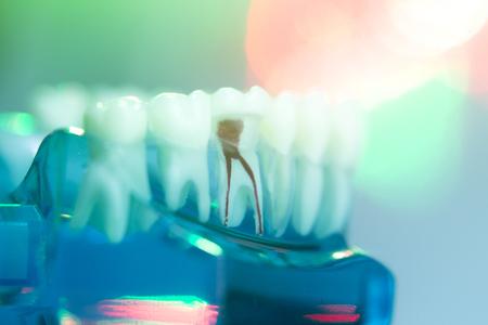 Zahnzähne, Mund, zahnmedizinisches Modell des zahnmedizinischen Zahnarztes, das jeden Zahn und Wurzelkanalverfall und -entzündung zeigt. Standard-Bild