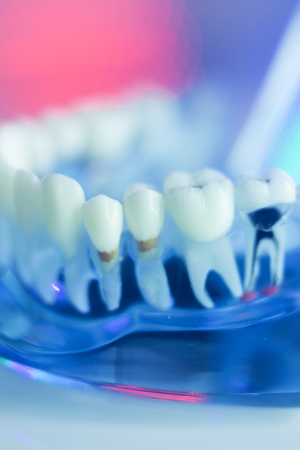 Dental teeth, mouth, gums dentists teaching model showing each tooth and root canal decay and inflamation.