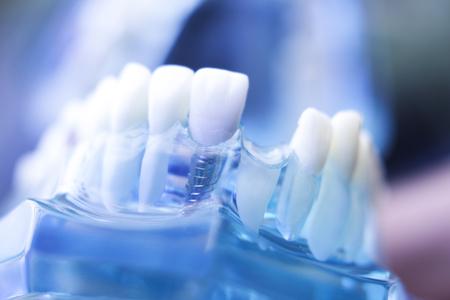 Dentsts zahnärztliche Prothesenzähne, Zahnfleisch, Wurzeln, die Studentenmodell mit Abstand in den Vorderzähnen unterrichten. Standard-Bild