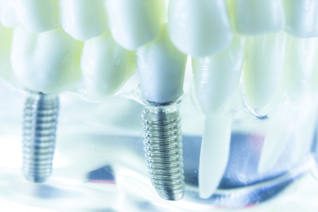Dental titanium aesthetic orthodontic tooth implant in dentists mouth teeth model closeup isolated.