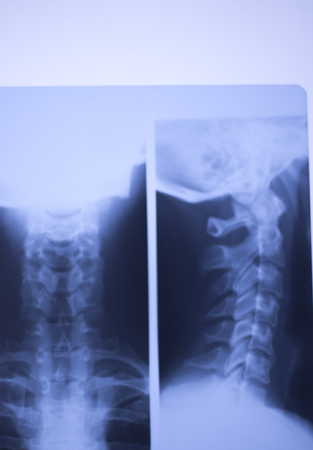 Medical hospital x-ray lowe back pain spine and neck traumatology scan.