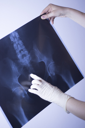 Medical hospital x-ray lowe back pain spine and hips traumatology scan.