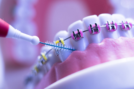 Inter dental teeth cleaning brush healthy floss action between each tooth with braces aligners.