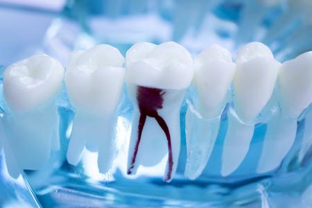 Lehrmodell für Zahnzähne von Zahnärzten, das jeden Zahn und jedes Zahnfleisch für Patienten und Studenten zeigt.