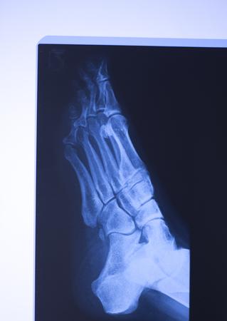 Medical hospital x-ray feet traumatology scan. Archivio Fotografico - 103587602
