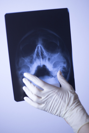 Medical hospital x-ray face skull mouth, teeth, nose and eyes scan. Stock Photo